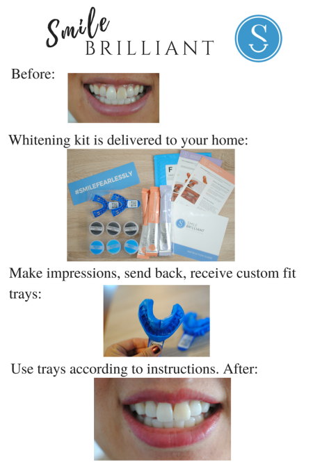 smilebrilliant teeth whitening at home