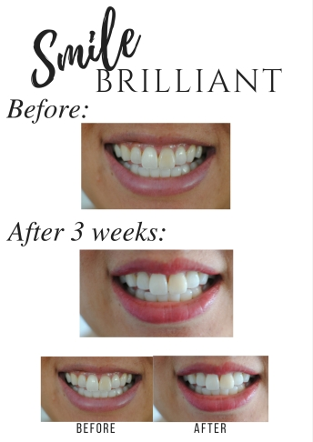 smilebrilliant smilebrilliant at home teeth whitening trays