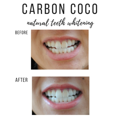 Carbon Coco natural charcoal teeth whitening